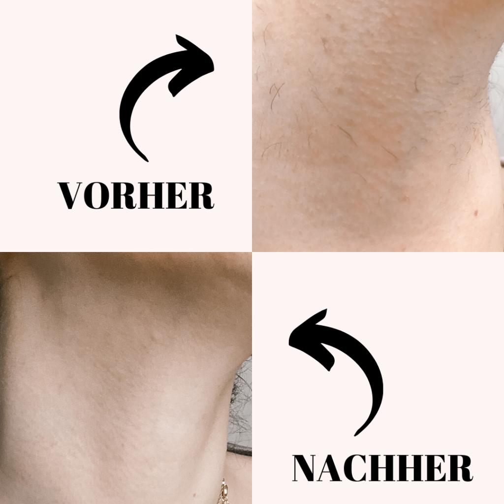 Braun Silk Expert Vorher/Nachher