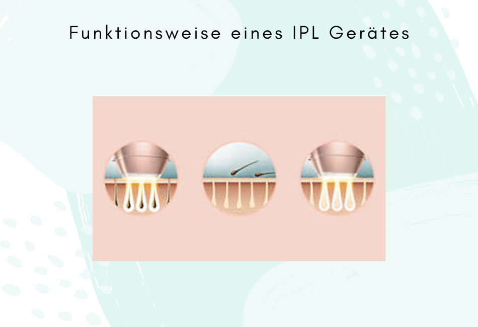 Funktionsweise IPL
