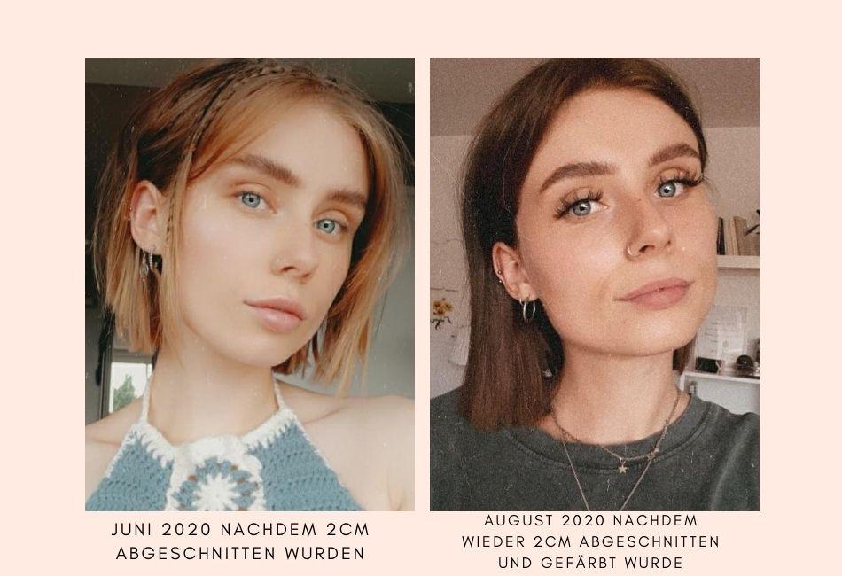 Vorher-Nachher-Bilder Haarwuchsmittel