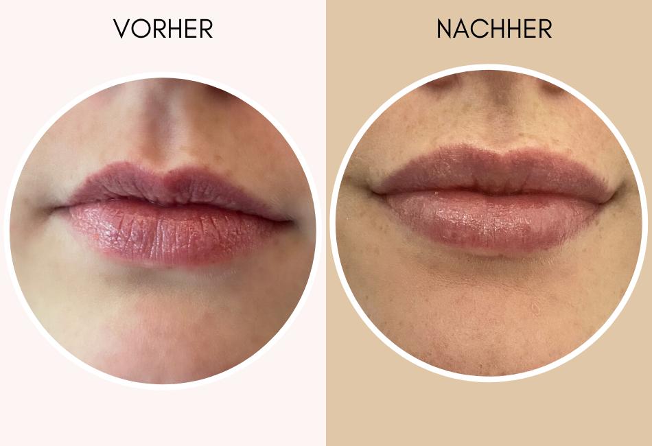 Lippen aufspritzen