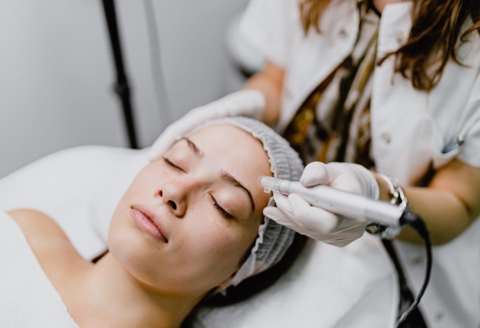Microneedling Behandlung & Erfahrungen