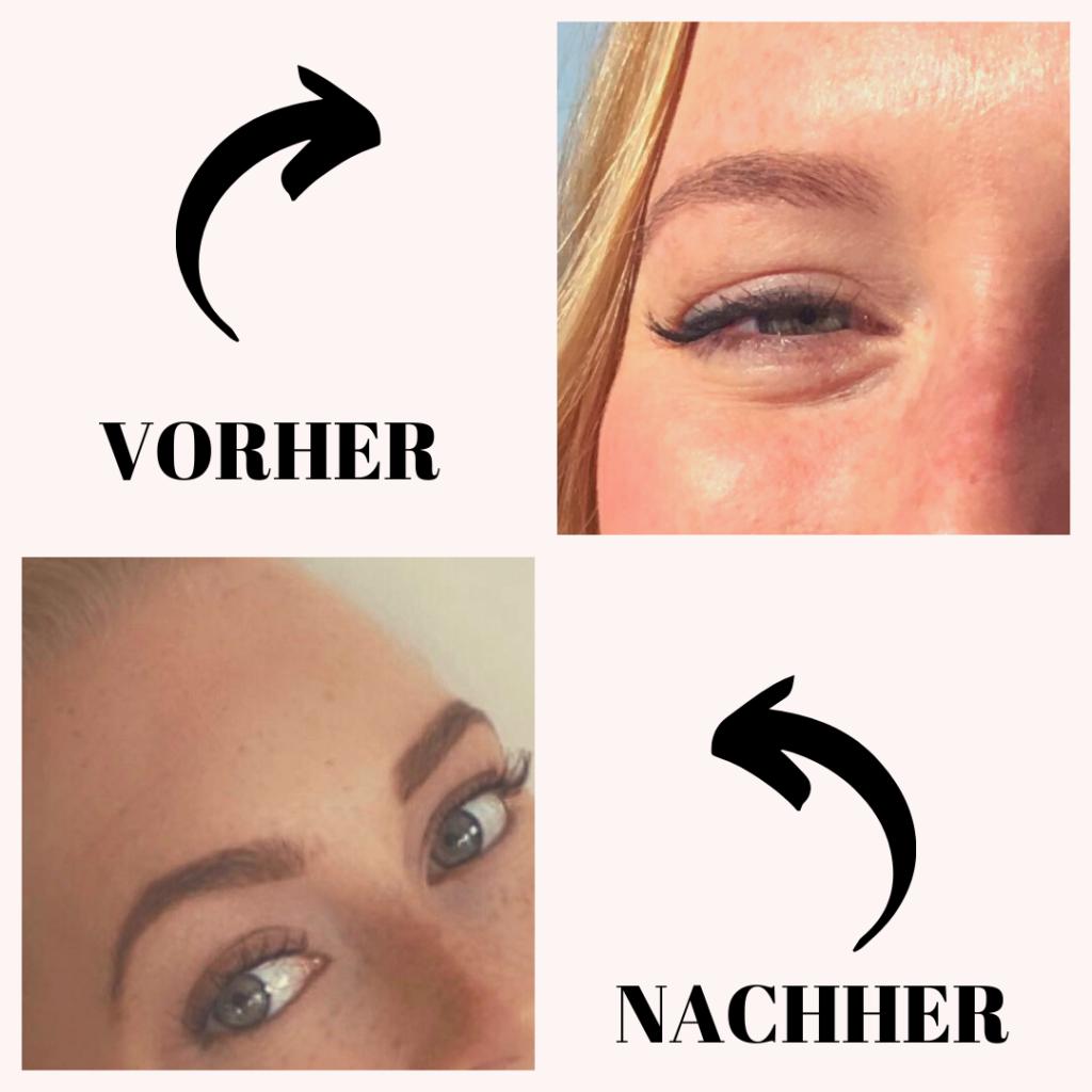 Vorher/Nachher Augenbrauenserum
